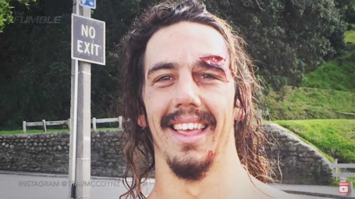 Surfista se entera que tiene tumor cerebral gracias a un wipeout