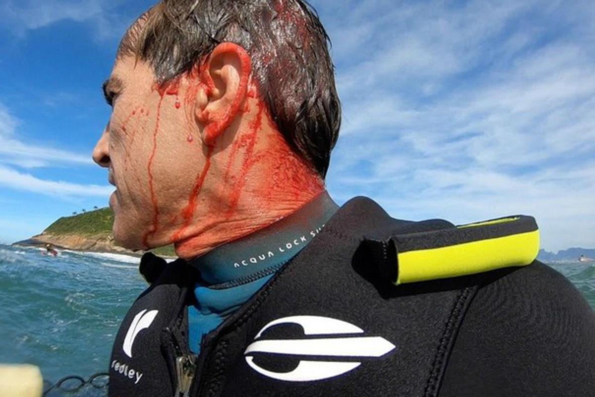 Carlos Burle pierde el conocimiento y se corta la cabeza surfeando en Río