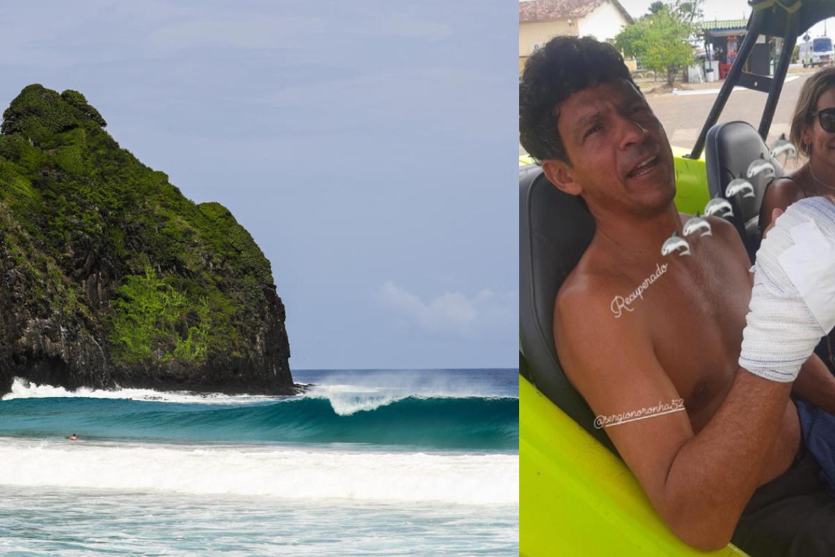 Ex surfista profesional es atacado por tiburón en Fernando de Noronha