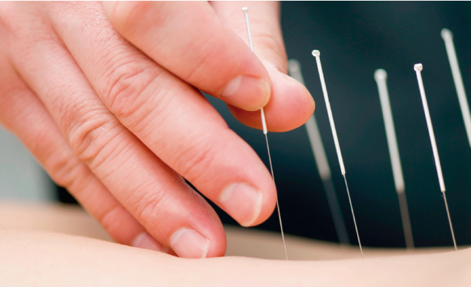 Beneficios de la acupuntura para el surfing